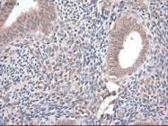 GTX83981 - Neurotrophin 4 / NTF4