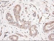 GTX83983 - Neurotrophin 3 / NTF3