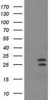 GTX84043 - NHEJ1 / Protein cernunnos