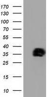 GTX84044 - NHEJ1 / Protein cernunnos