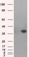GTX84149 - MAP kinase p38 beta / MAPK11