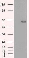 GTX84248 - Cytokeratin 8
