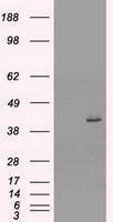 GTX84249 - Cytokeratin 19