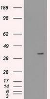 GTX84250 - Cytokeratin 19