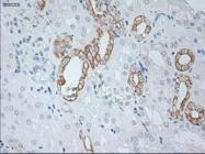 GTX84251 - Cytokeratin 19