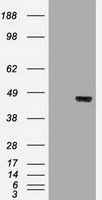 GTX84253 - Cytokeratin 19