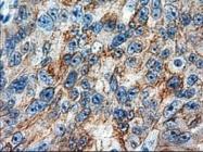 GTX84256 - Cytokeratin 18