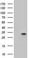 GTX84271 - Ketohexokinase