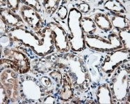 GTX84310 - HIP1-interacting protein