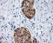GTX84311 - HIP1-interacting protein