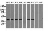 GTX84317 - Isocitric dehydrogenase alpha / IDH3A