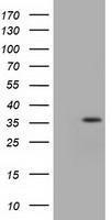 GTX84318 - Isocitric dehydrogenase alpha / IDH3A