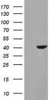 GTX84391 - Hydroxyacid oxidase 1 / HAOX1