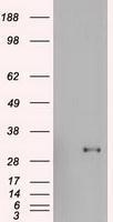 GTX84408 - Homeobox protein goosecoid / GSC