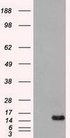 GTX84503 - FGF acidic / FGF1