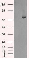 GTX84504 - FERMT2 / PLEKHC1