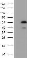GTX84571 - Epoxide hydrolase 2 / EPHX2