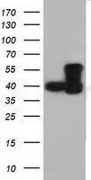 GTX84593 - DYNC1LI1