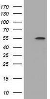 GTX84595 - DYNC1LI1