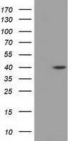 GTX84616 - Deoxyhypusine synthase (DHPS)