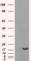 GTX84661 - Alpha-crystallin B chain
