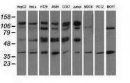 GTX84710 - CD5