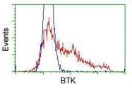GTX84792 - BTK