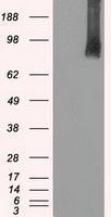 GTX84810 - B-Raf proto-oncogene