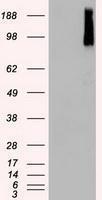 GTX84820 - B-Raf proto-oncogene