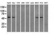 GTX84844 - ATP synthase subunit beta