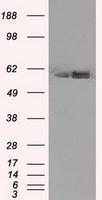 GTX84845 - ATP synthase subunit beta