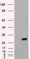 GTX84882 - Apolipoprotein M (Apo M)