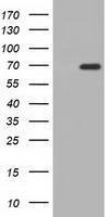 GTX84922 - Adenylate kinase 5 (AK5)