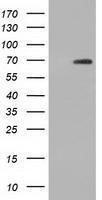 GTX84923 - Adenylate kinase 5 (AK5)