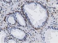 GTX84925 - Adenylate kinase 5 (AK5)