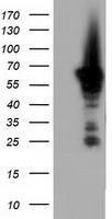 GTX84927 - Adenylate kinase 5 (AK5)