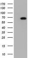 GTX84928 - Adenylate kinase 5 (AK5)