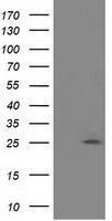 GTX84934 - Adenylate kinase 3 (AK3)