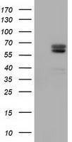 GTX84947 - Alpha-fetoprotein / AFP