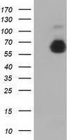GTX84949 - Alpha-fetoprotein / AFP