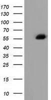 GTX84951 - Alpha-fetoprotein / AFP
