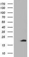 GTX84958 - ADI1 / MTCBP1
