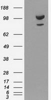 GTX84959 - Alpha-actinin-1 / ACTN1