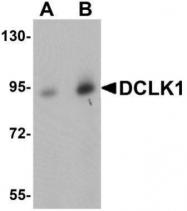 GTX85008 - Doublecortin-like kinase 1
