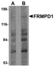 GTX85011 - FRMPD1