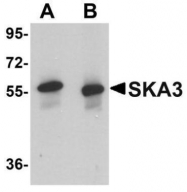 GTX85013 - SKA3