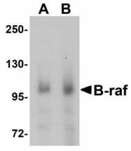 GTX85102 - B-Raf proto-oncogene
