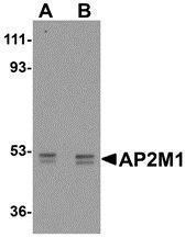 GTX85110 - AP2 complex subunit mu-1 / AP2M1