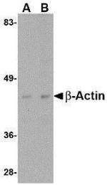 GTX85119 - Actin beta / ACTB