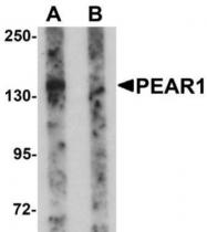 GTX85138 - PEAR1
